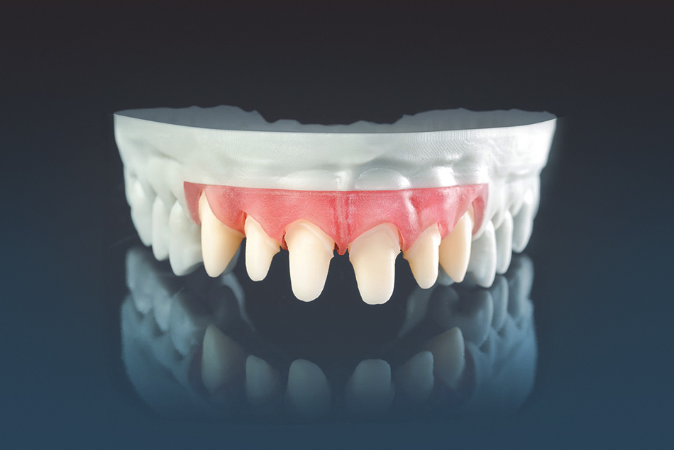 INTRAORAL SCAN / PRINTED MODEL